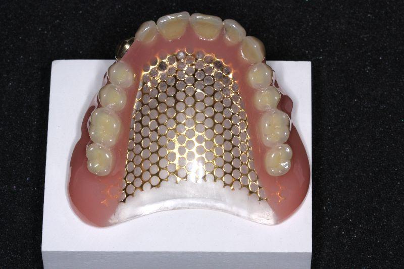 3 point dental gmbh co zahntechnik hinzer kg kunststoff. Black Bedroom Furniture Sets. Home Design Ideas