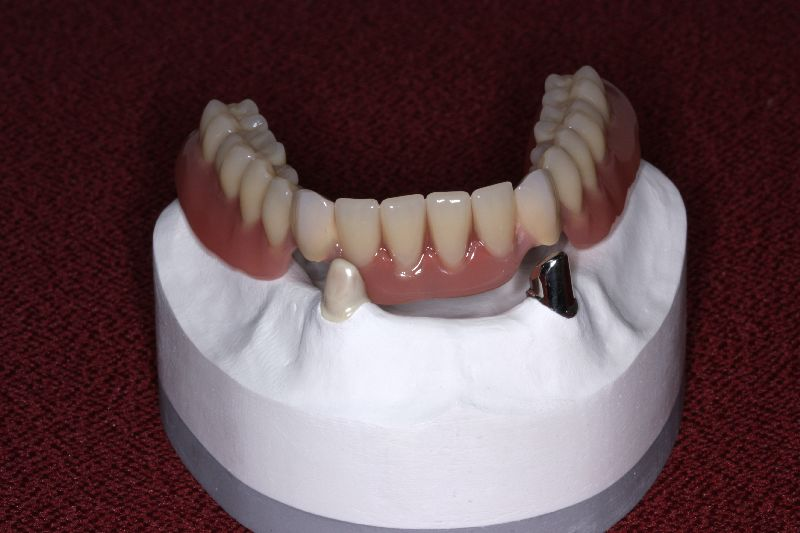 Point dental gmbh co zahntechnik hinzer kg teleskope
